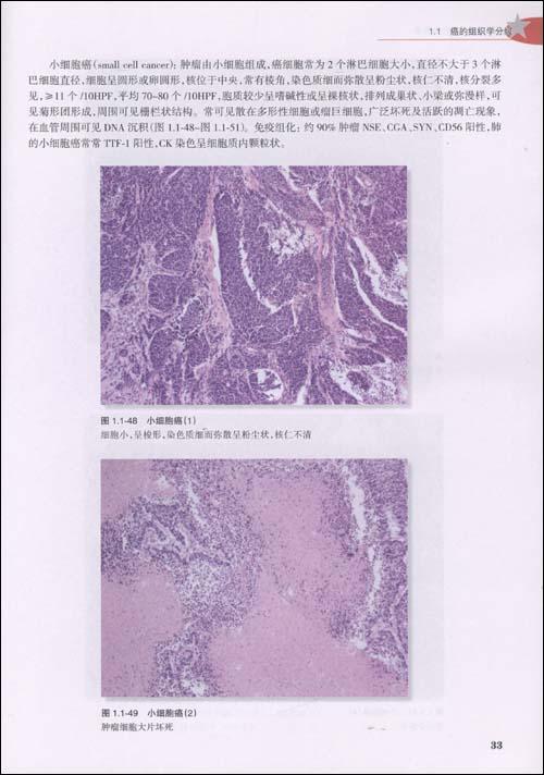 常见肿瘤组织学分级图谱