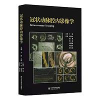 冠状动脉腔内影像学